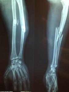 https://pixabay.com/en/fracture-bone-xray-skeleton-2333164/ by Taokinesis
